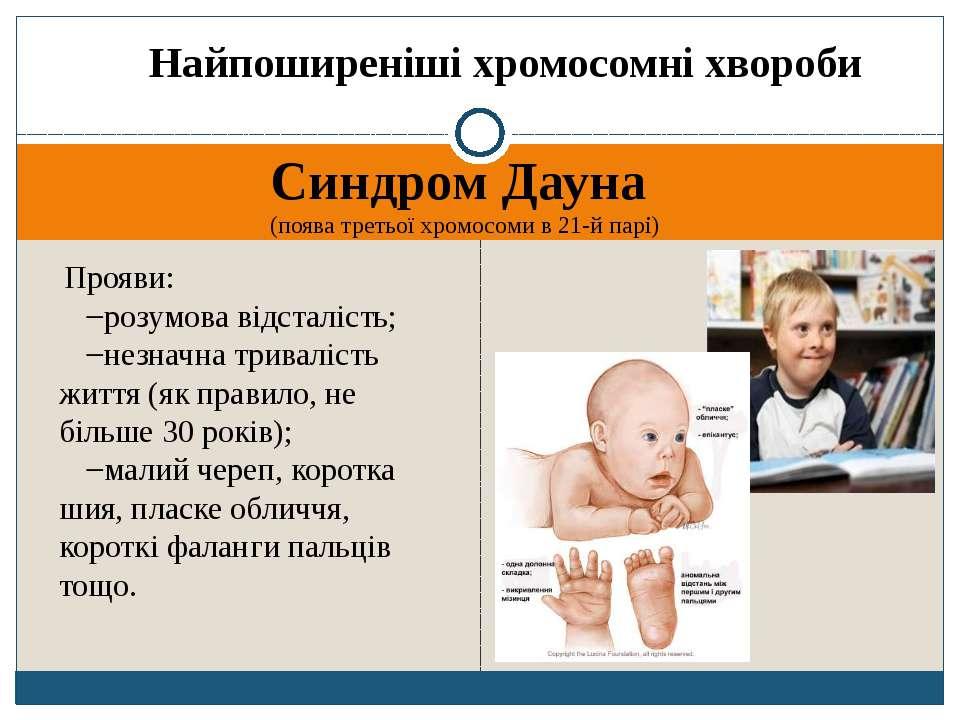 Найпоширеніші хромосомні хвороби Синдром Дауна (поява третьої хромосоми в 21-...
