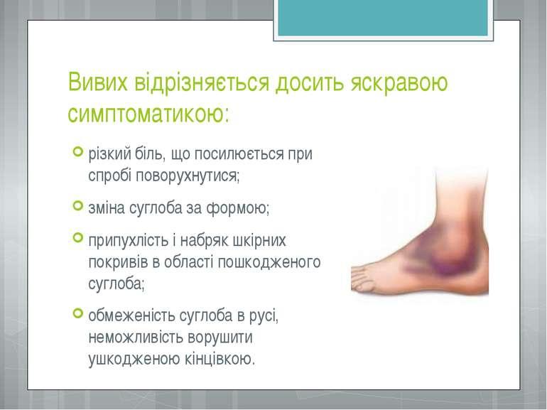 Вивих відрізняється досить яскравою симптоматикою: різкий біль, що посилюєтьс...
