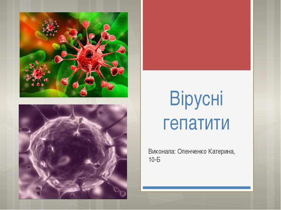 Вірусні гепатити Виконала: Оленченко Катерина, 10-Б