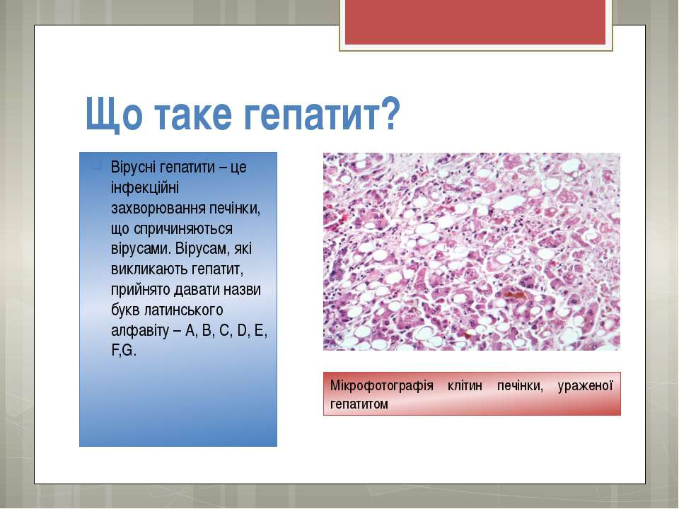 Що таке гепатит? Вірусні гепатити – це інфекційні захворювання печінки, що сп...