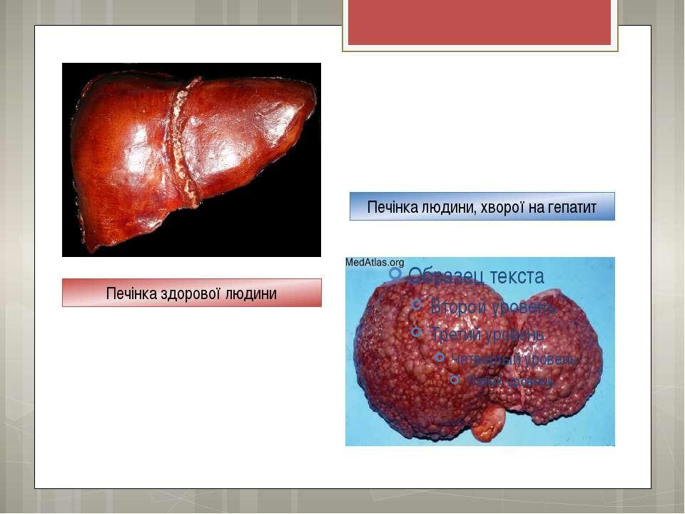 Печінка людини, хворої на гепатит Печінка здорової людини
