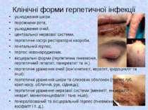 Клінічні форми герпетичної інфекції ушкодження шкіри, порожнини рота, ушкодже...