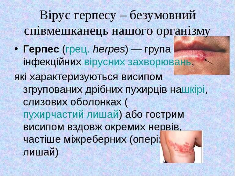 Вірус герпесу – безумовний співмешканець нашого організму Герпес(грец.herpe...