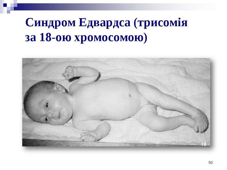 50 Синдром Едвардса (трисомія за 18-ою хромосомою)