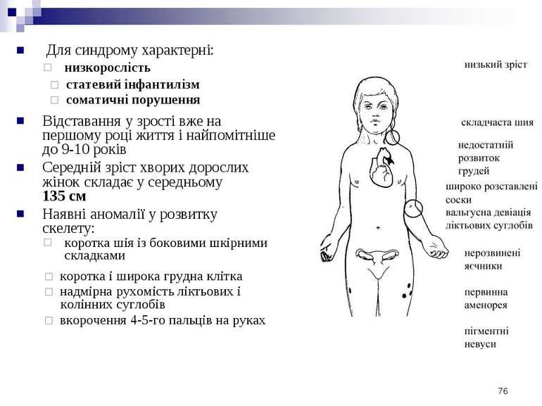 Для синдрому характерні: низкорослість статевий інфантилізм соматичні порушен...
