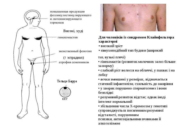 (↑ эстрадиол) Тельце Барра Високі, худі Для чоловіків із синдромом Клайнфельт...
