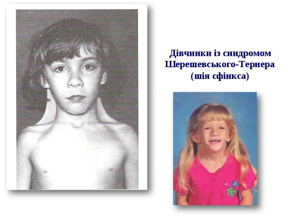 Дівчинки із синдромом Шерешевського-Тернера (шія сфінкса)