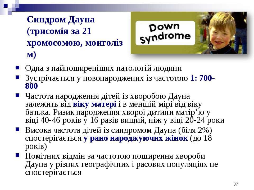 Синдром Дауна (трисомія за 21 хромосомою, монголіз м) Одна з найпоширеніших п...