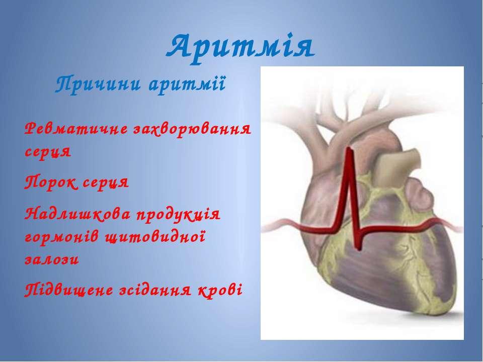 Аритмія Причини аритмії Ревматичне захворювання серця Порок серця Надлишкова ...