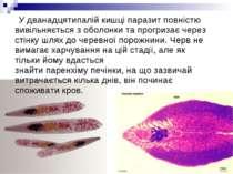 Удванадцятипалій кишціпаразит повністю вивільняється з оболонки та прогриза...