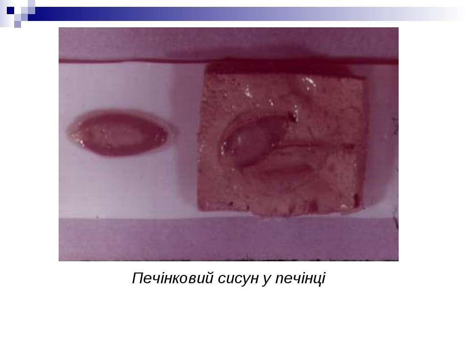 Печінковий сисун у печінці