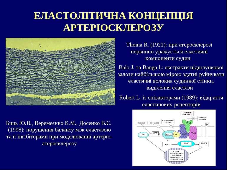 ЕЛАСТОЛІТИЧНА КОНЦЕПЦІЯ АРТЕРІОСКЛЕРОЗУ Thoma R. (1921): при атеросклерозі пе...