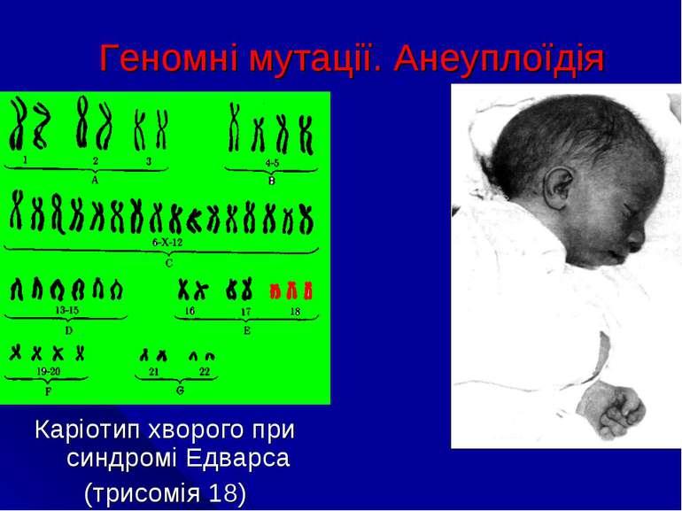 Геномні мутації. Анеуплоїдія Каріотип хворого при синдромі Едварса (трисомія 18)