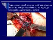 Принципово новий (анатомічний, з виділенням нервів та прищитоподібних залоз) ...