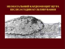 НЕОНАТАЛЬНИЙ КАРДІОМІОЦИТ ЩУРА ПІСЛЯ 24 ГОДИН КУЛЬТИВУВАННЯ