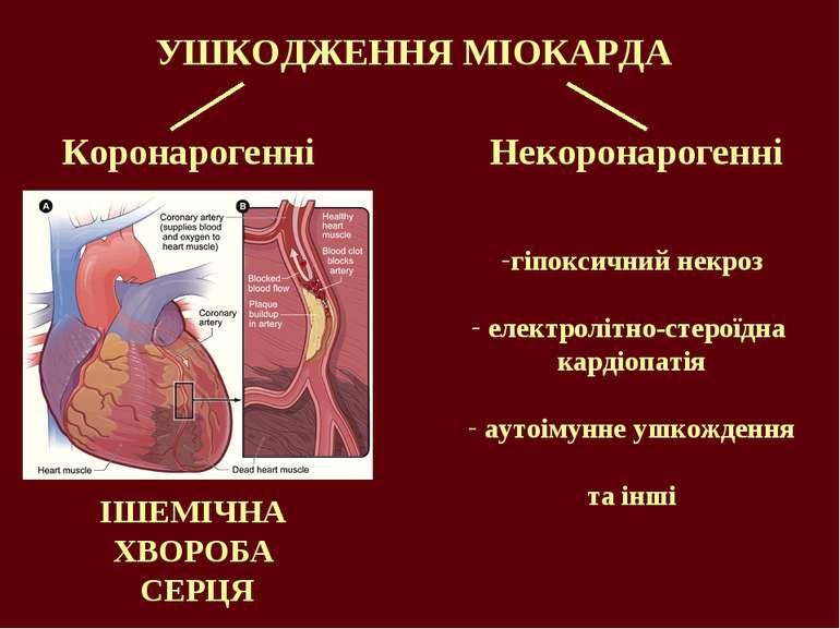 УШКОДЖЕННЯ МІОКАРДА Коронарогенні Некоронарогенні гіпоксичний некроз електрол...
