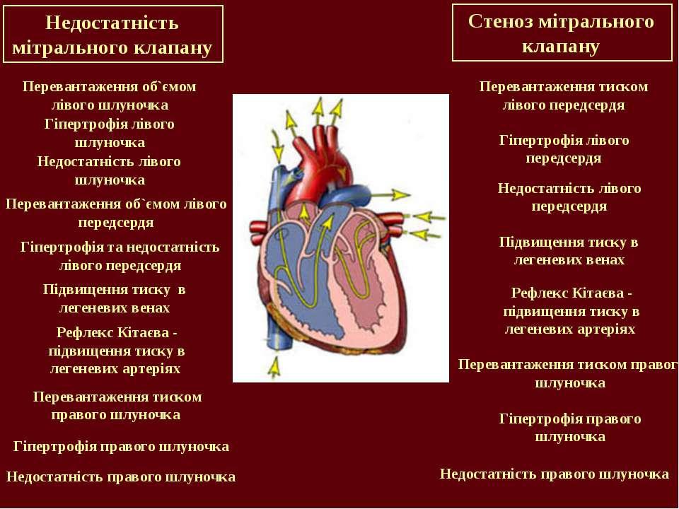 Недостатність мітрального клапану Перевантаження об`ємом лівого шлуночка Гіпе...