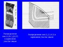 Распределение зон (А,В,С,Д,Е,F) в кариозном участке эмали Распределение зон (...