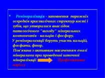 Ремінералізація - заповнення порожніх осередків кристалічних структур кості і...