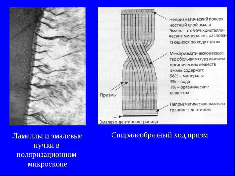 Ламеллы и эмалевые пучки в поляризационном микроскопе Спиралеобразный ход призм