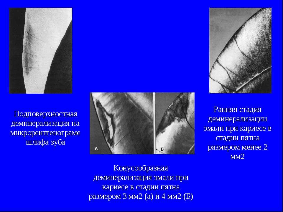 Подповерхностная деминерализация на микрорентгенограме шлифа зуба Ранняя стад...