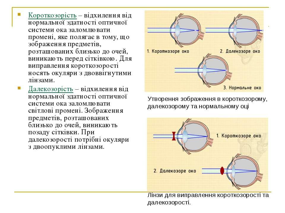 Короткозорість – відхилення від нормальної здатності оптичної системи ока зал...
