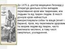 До 1875 р. доктор медицини Леонард у літературі декілька сотен випадків перел...