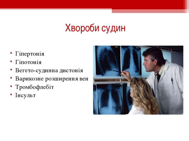 Хвороби судин Гіпертонія Гіпотонія Вегето-судинна дистонія Варикозне розширен...