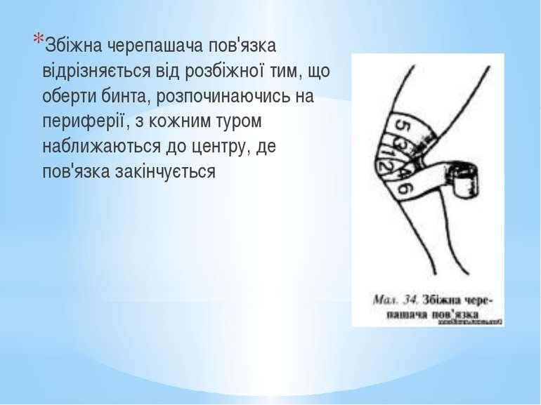 Збіжна черепашача пов'язка відрізняється від розбіжної тим, що оберти бинта, ...
