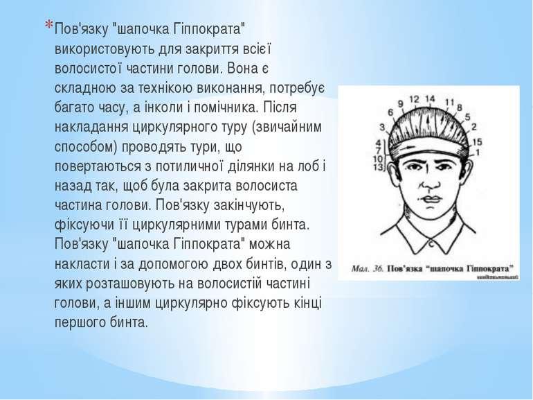 """Пов'язку """"шапочка Гіппократа"""" використовують для закриття всієї волосистої ча..."""