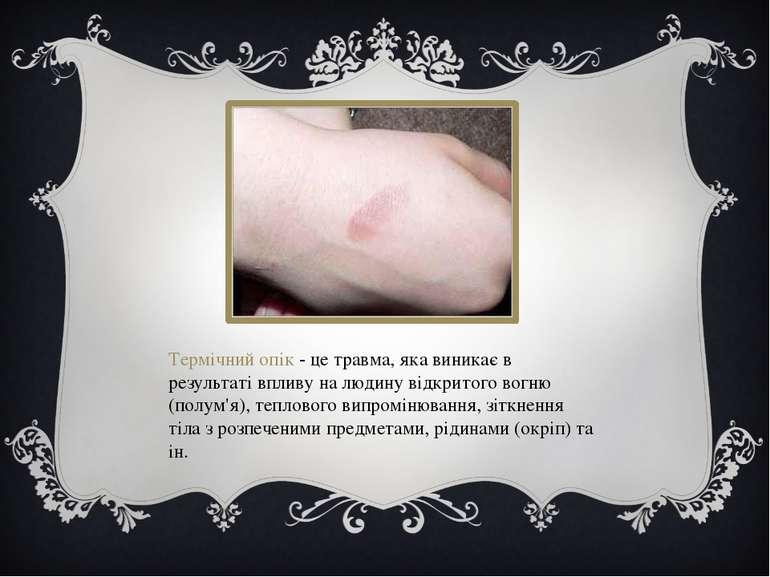 Термічний опік - це травма, яка виникає в результаті впливу на людину відкрит...