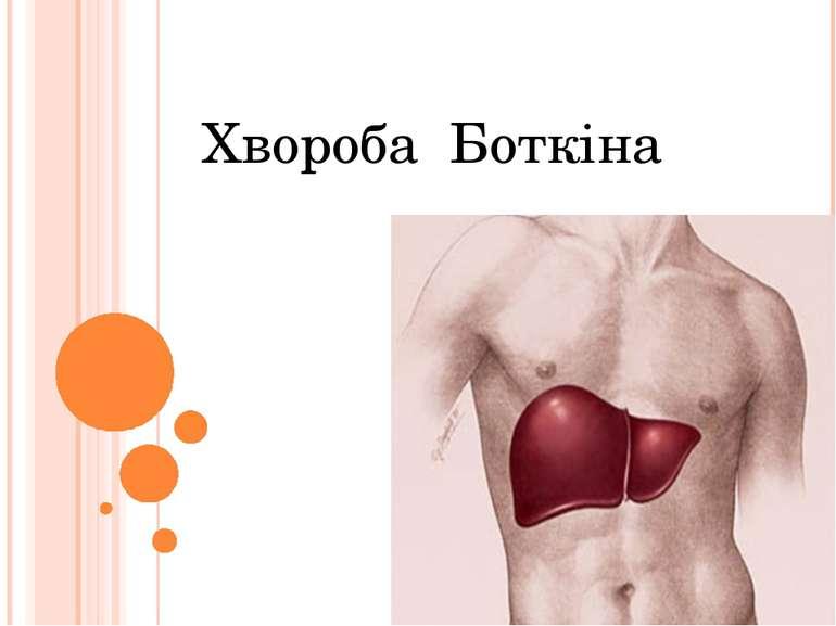 Хвороба Боткіна