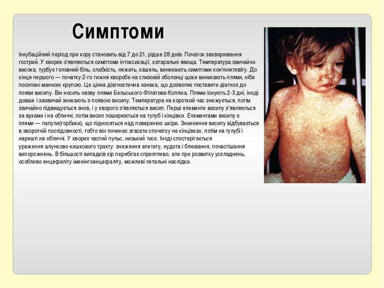 Симптоми Інкубаційний періодпри кору становить від 7 до 21, рідше 28 днів. П...