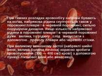 При тяжких розладах кровообігу набряки бувають на ногах, набрякова рідина ску...