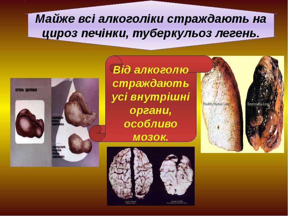 Майже всі алкоголіки страждають на цироз печінки, туберкульоз легень. Від алк...