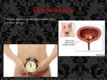 Сечовий міхур У курців зростає ризик виникнення раку сечового міхура.