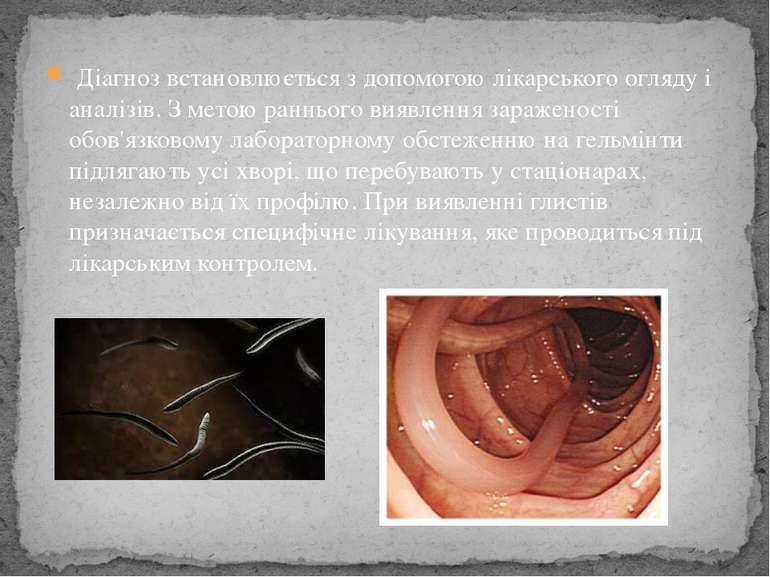 Діагноз встановлюється з допомогою лікарського огляду і аналізів. З метою ран...