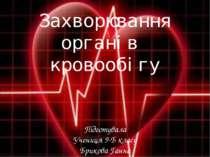 Захворювання органів кровообігу Підготувала Учениця 9-Б класу Брикова Ганна