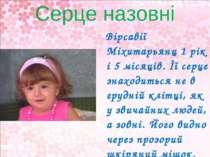 Серце назовні Вірсавії Міхитарьянц 1 рік і 5 місяців. Її серце знаходиться не...