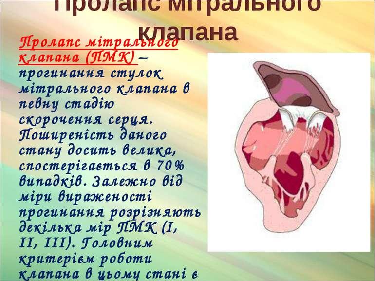 Пролапс мітрального клапана Пролапс мітрального клапана (ПМК) – прогинання ст...