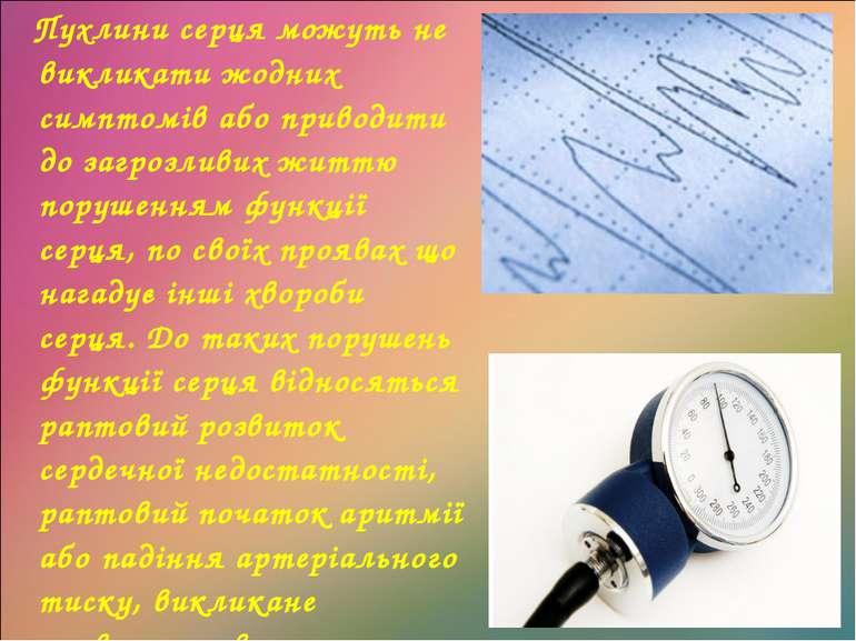 Пухлини серця можуть не викликати жодних симптомів або приводити до загрозлив...
