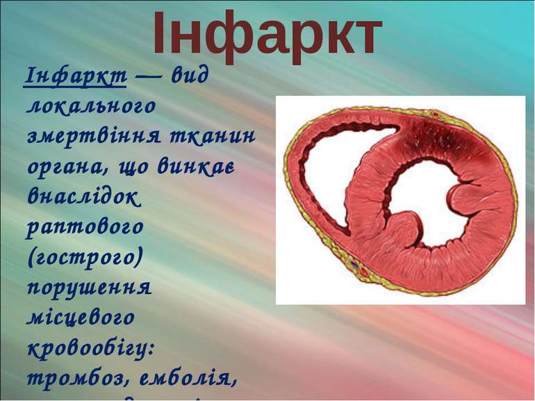 Інфаркт Інфаркт — вид локального змертвіння тканин органа, що винкає внаслідо...