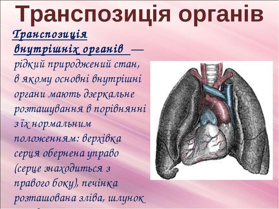 Транспозиція органів Транспозиція внутрішніх органів — рідкий природжений ста...