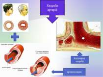 Хвороби артерiй Коронарна хвороба артеросклероз