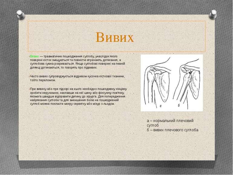 Вивих Вивих — травматичне пошкодження суглобу, унаслідок якого поверхні кісто...