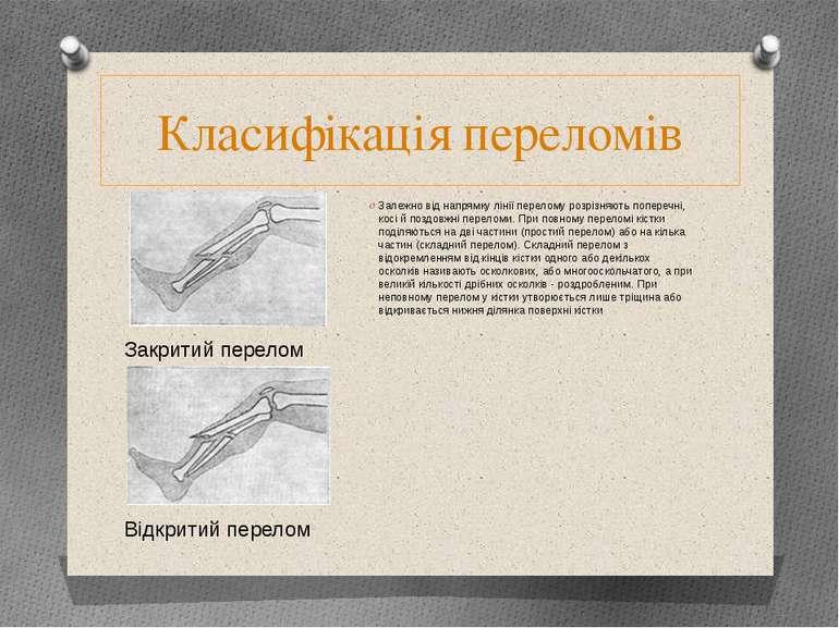 Класифікація переломів Залежно від напрямку лінії перелому розрізняють попере...