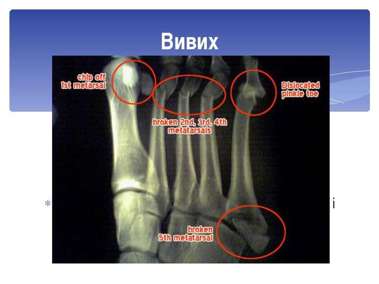 Це зміщення суглобових поверхонь кісток, які утворюють суглоб, після різких р...