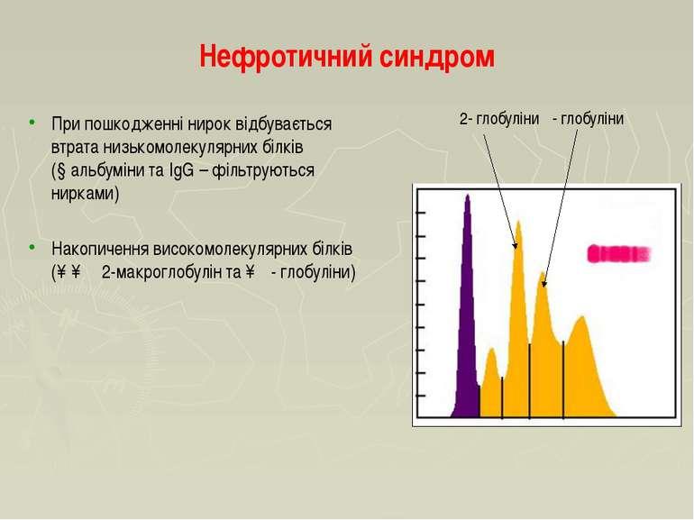 Нефротичний синдром При пошкодженні нирок відбувається втрата низькомолекуляр...