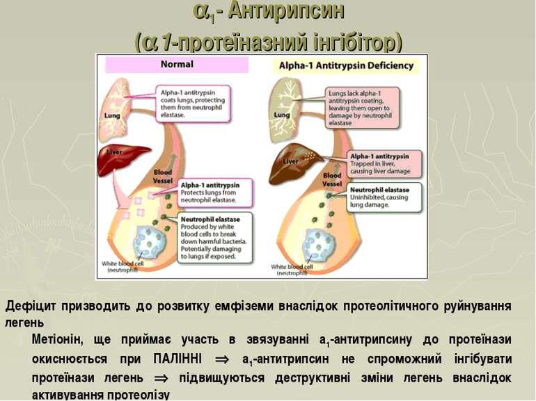 1- Антирипсин (a1-протеїназний інгібітор) Дефіцит призводить до розвитку емфі...
