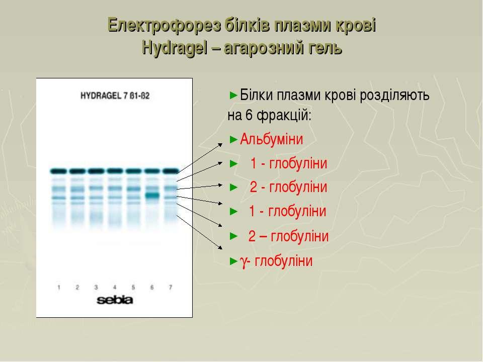 Електрофорез білків плазми крові Hydragel – агарозний гель Білки плазми крові...